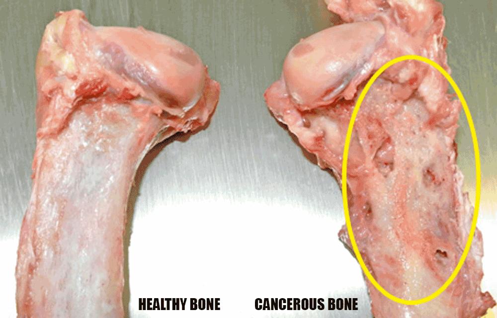 bone cancer (osteosarcoma) in greyhounds